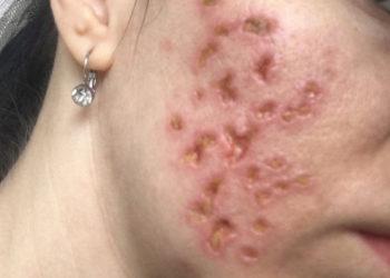 Осложнения после обработки кожи трихлороуксусной кислотой ()