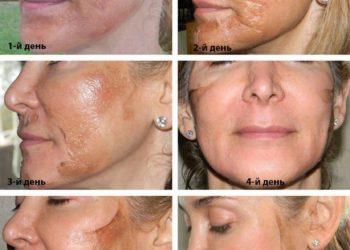 Как омолодить лицо с помощью трихлоруксусного пилинга ТСА (+ фото, отзывы, рекомендации)