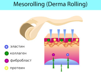 Принцип действия микроигольчатой терапии
