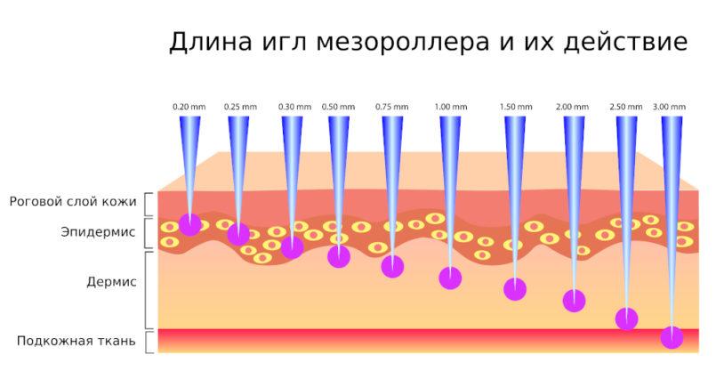 Длина игл дермороллера