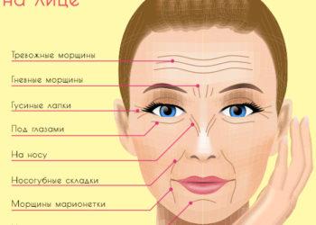Виды морщин на лице: общая характеристика, причины появления и способ борьбы